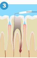 消毒液を注入して根管の中を徹底的に消毒する。