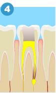根管充填終了! ※根の先端まできっちりお薬が入ることが大切です。